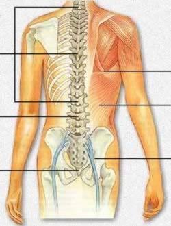 درمان درد عصب سیاتیک