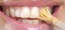 بهداشت دهان و دندان در طب اسلامی